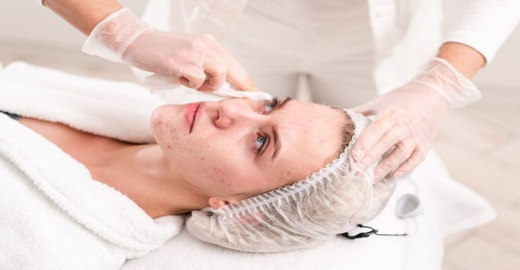 Treatment option for Acne