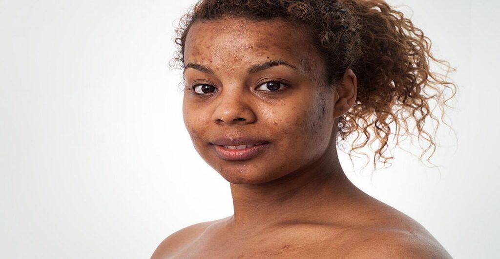 Why do we get acne