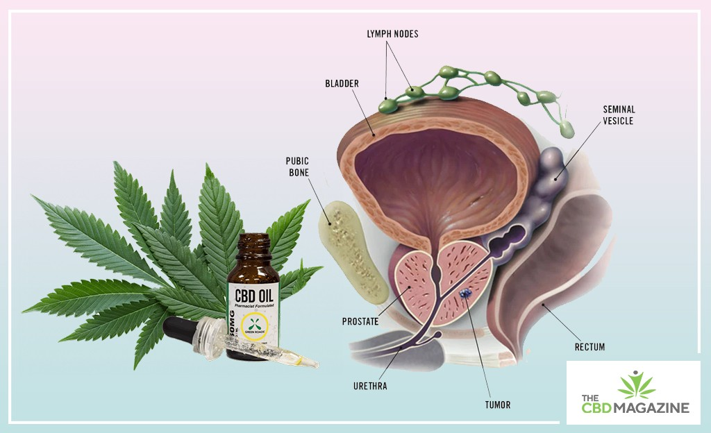 CBD for Prostate Cancer