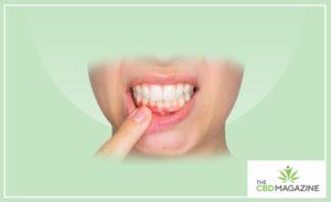 cbd oil for gum pain