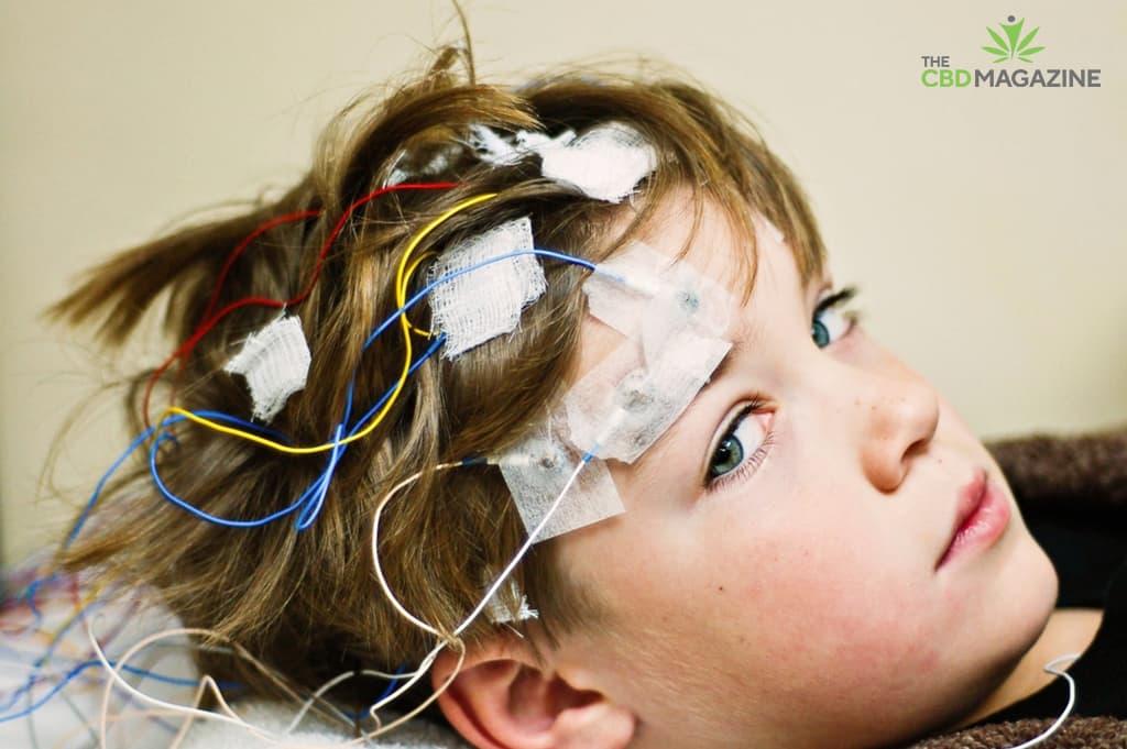 cbd research in epilepsy