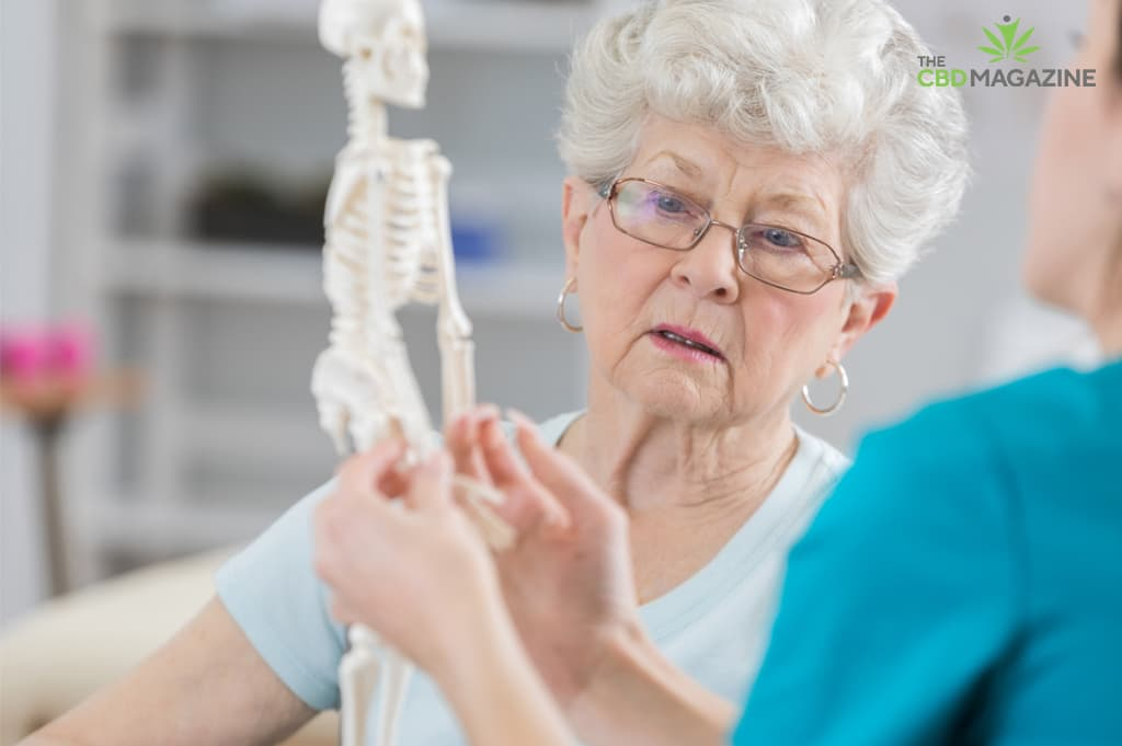 cbd and osteoporosis