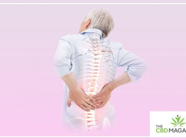 CBD for Osteoporosis